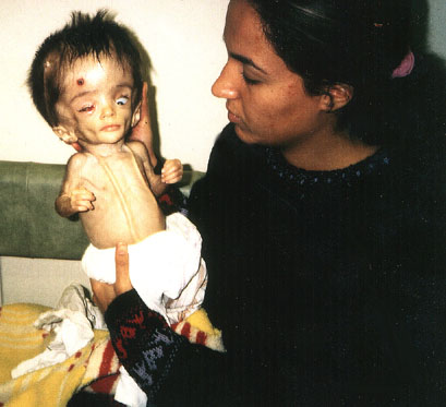 Deformed Iraqi baby caused by USA use of depleted uranium to hardened ammunition